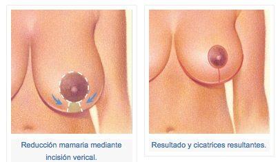 técnicas de reducción mamaria