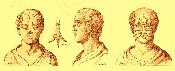 historia rinoplastia