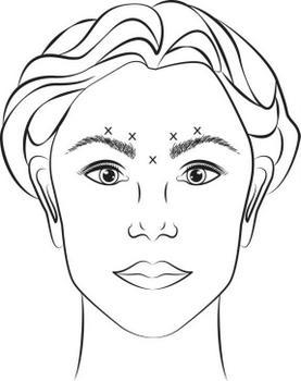 Puntos de inyección en líneas glavelares producidas en máximo frucimiento.